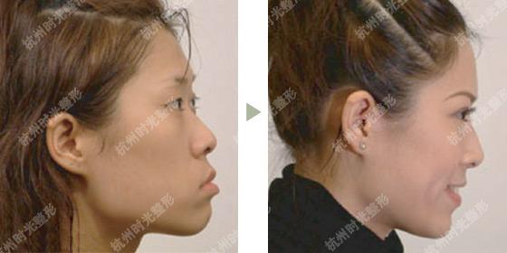 面部填充前后对比图面部填充整形面部填充图
